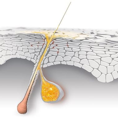 Acne and hormones – How hormones affect your skin