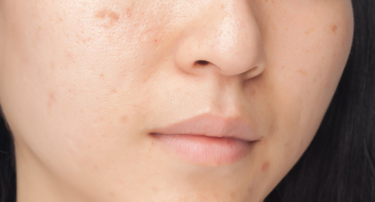 Pimple marks   the consequences of acne   Eucerin