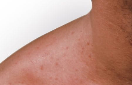 Symptoms of Mallorca acne