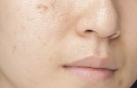 Woman´s face with oily skin