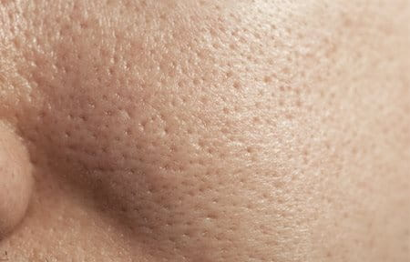 Close-up from cheek with enlarged pores