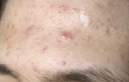 Close-up from forehead with acne symptoms