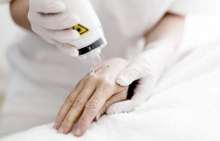 Laser therapy used on feamale hand