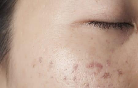 Close Up Of Female Cheek