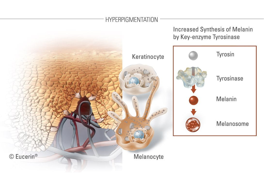 Illustration of hyperpigmentation