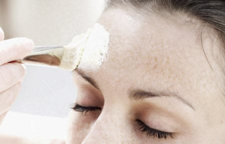 Woman´s forehead gets treated with chemical peel