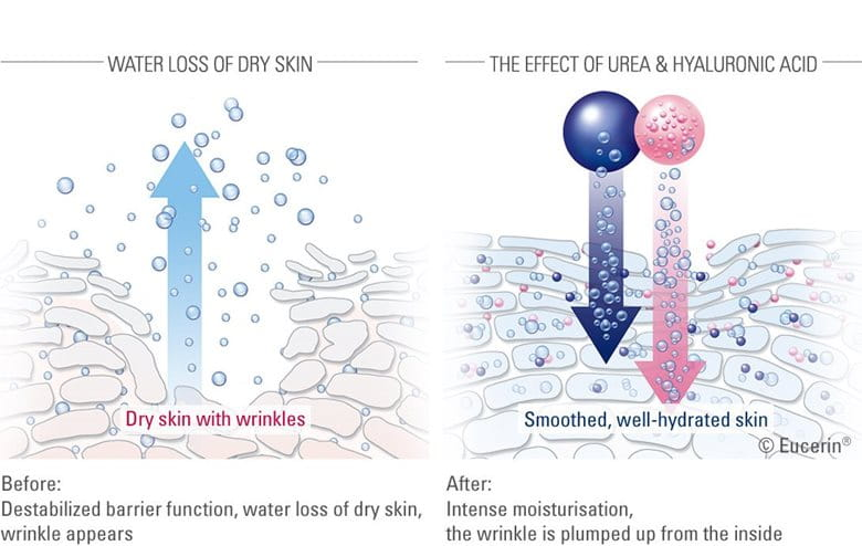 Illustration of the effect of Urea and Hyaluronic acid on skin
