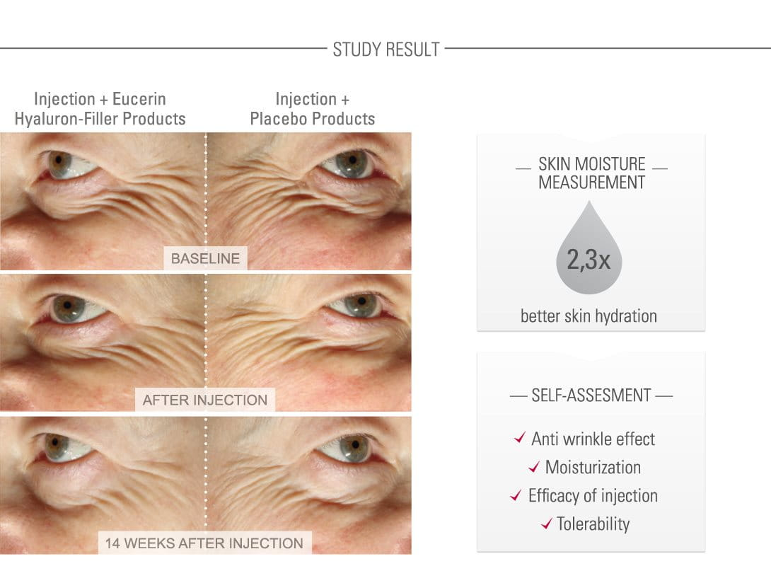 Clinical Study Shown On Elderly Women 180 S Faces