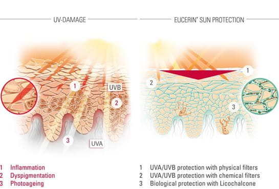 Illustration of UV-damage and sun protection
