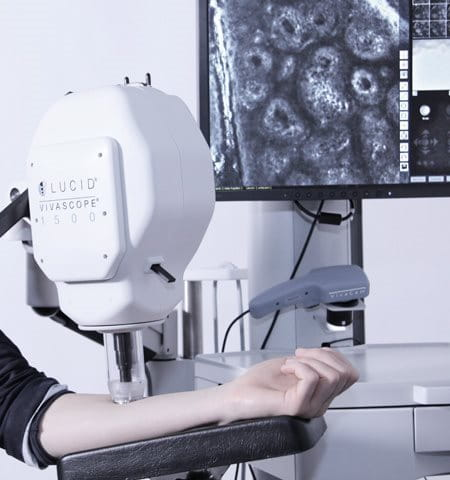 Female arm gets tested with CLMS (Confocal Laser Microscope)