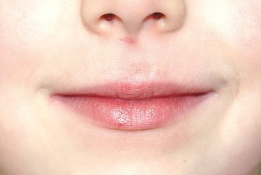Lips after treatment with Eucerin Acute Lip Balm