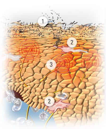 Illustration of skin with symptoms of Atopic Dermatitis.