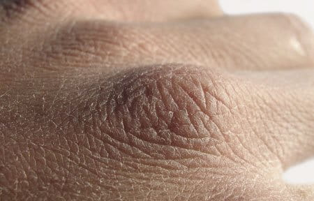 Close-up from back of the hand with dry skin