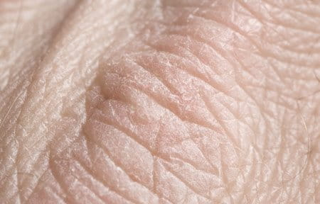 Close-up from dry skin on hands