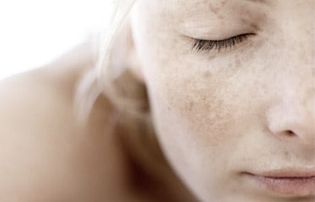 Woman with closed eyes and freckles.