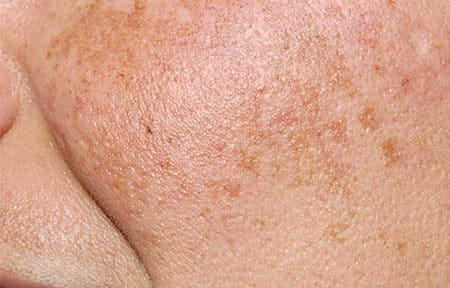 Hyperpigmentation: What It Is