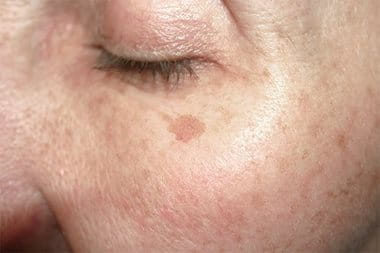 brown patch on face nhs