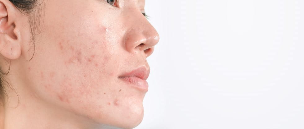 Hyperpigmentation | post-inflammatory hyperpigmentation