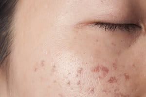 Hyperpigmentation | post-inflammatory hyperpigmentation