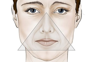 Sagging skin face inverted triangle of beauty