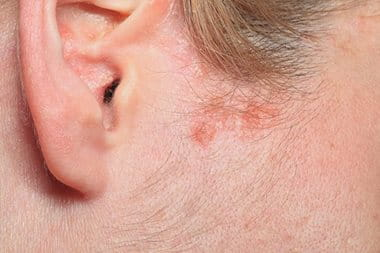 Sebborheic dermatitis: causes, symptoms, and treatments