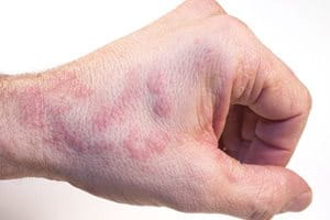 Causes, symptoms, and treatments for hand eczema | Atopic