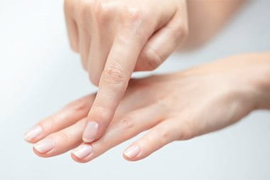Cracked skin on hands and feet | Eucerin