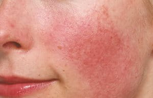 Hypersensitive skin: causes, symptoms, triggers, and