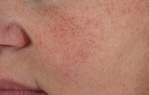 Hypersensitive facial skin: causes, symptoms, and treatment