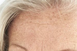 Hyperpigmentation: causes, symptoms, and treatments